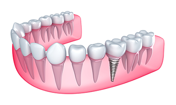 Dental Implants Astoria NY Dentist